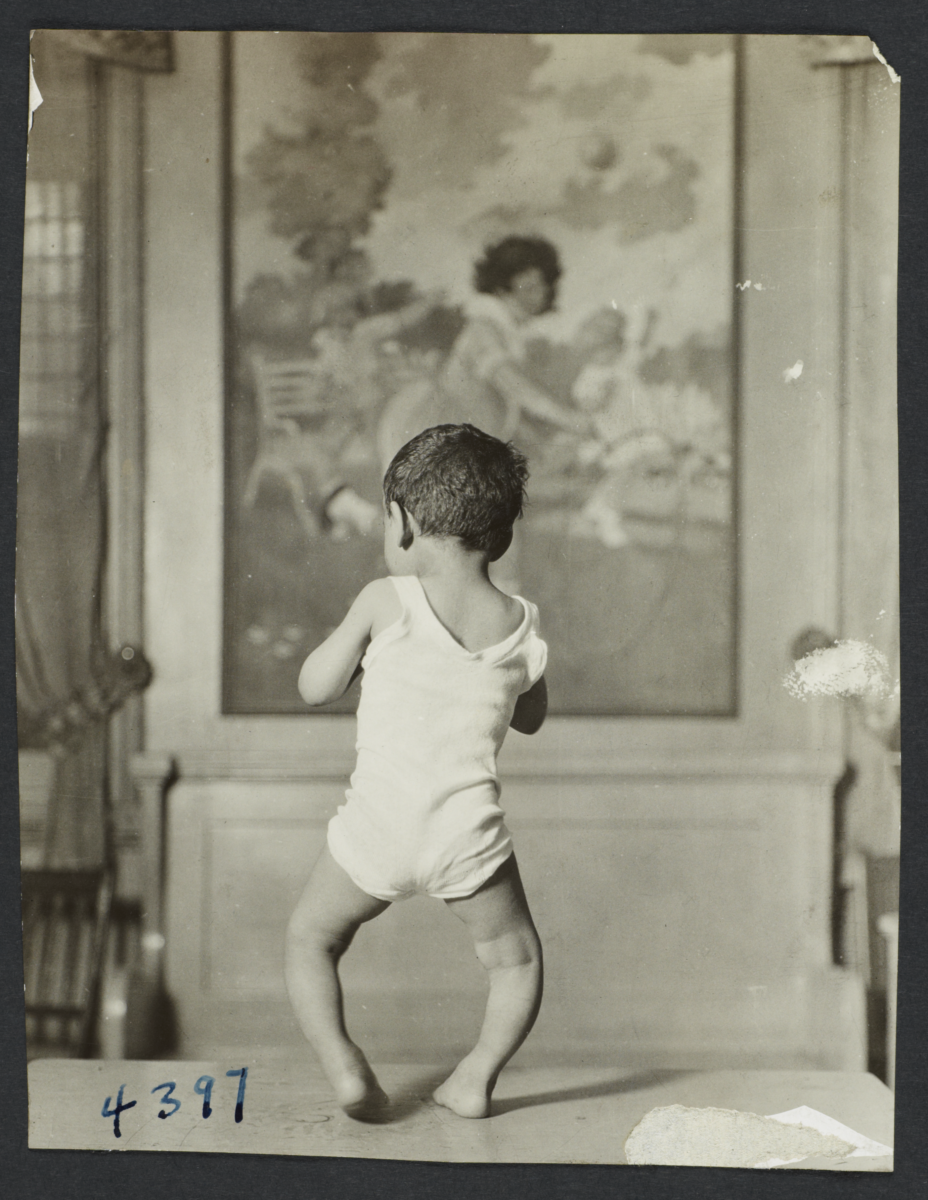 Mulberry Health Center Album -- Boy with Bowed Legs